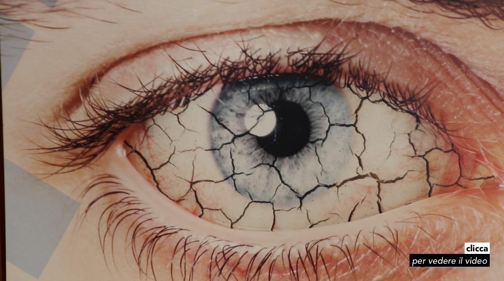 4 occhio secco 02apr17