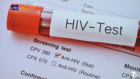 4-HIV BERGAMO 24mar19
