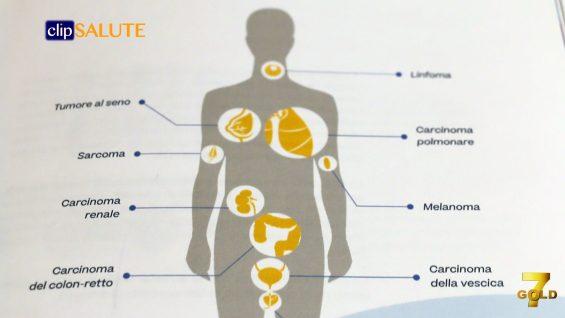 immunoterapia tumori