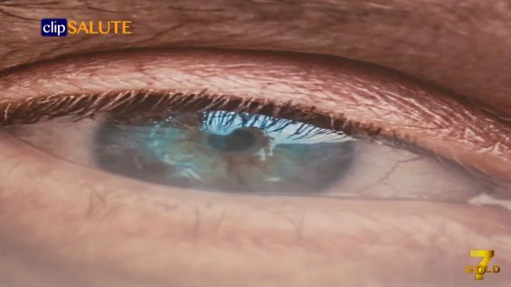 maculopatia senile umida