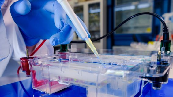 Scientist conducting the gel electrophoresis biological process as part of coronavirus research